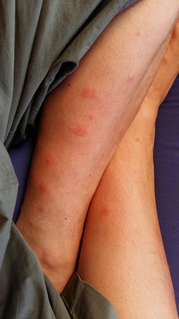 moustique-1